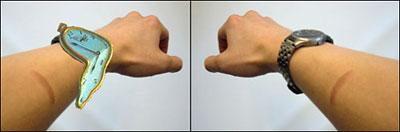 Arm photos
